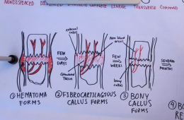 The process of healing bone fractures. Credit: Rachel Chang // The Foothill Dragon Press